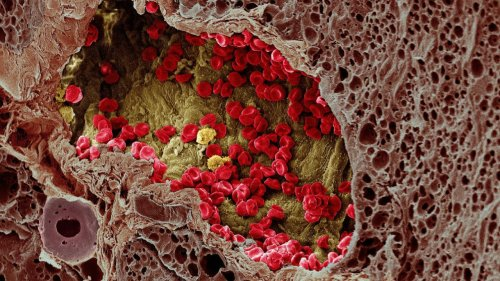 Scientists Have Finally Figured out How Cancer Spreads Through the Bloodstream