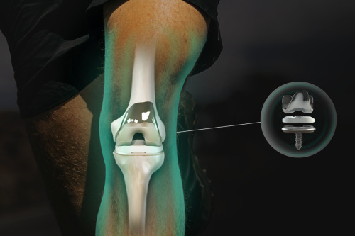 Invest in a New Knee Replacement Technology That Could Change Joint Surgeries Forever