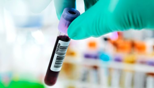 Blood test for depression could personalize treatment - Futurity