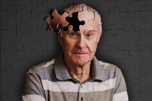Immunomodulatory Treatment Halts Alzheimer's Disease Progression, Improves Cognition in Primates