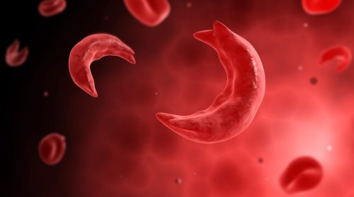 Base Editor Corrects Sickle-Cell Disease Mutation, Achieves Phenotypic Rescue in Mice
