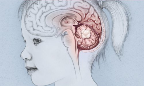 Potential New Strategy for Blocking Cancer Cell Growth in Medulloblastoma Revealed