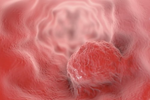 Retroviral Elements Could Be Exploited to Fight Esophageal Cancer