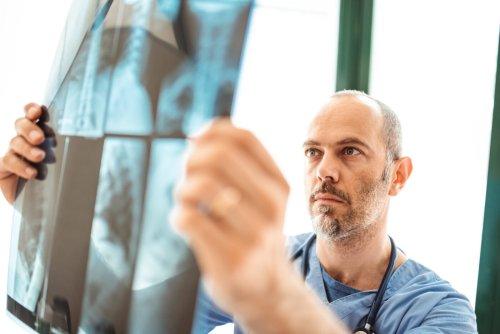 Microgel-Coated Mesenchymal Stromal Cells May Reverse Pulmonary Fibrosis
