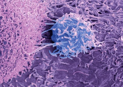 Advanced Prostate Cancer Treatment May Benefit from Autophagy Inhibitor