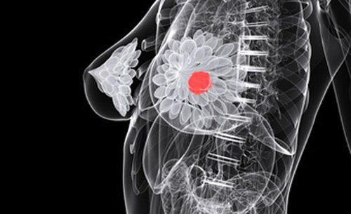 New Therapy Targets Aggressive Chemotherapy-Resistant Breast Cancer