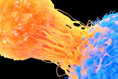 Researchers Reveal How Killer T Cells Are Blocked from Fighting Cancer Cells