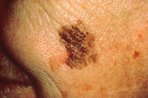 Potential New Treatment against Melanoma