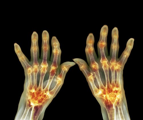 Imbalances in Mouth Microflora May Indicate Developing Rheumatoid Arthritis