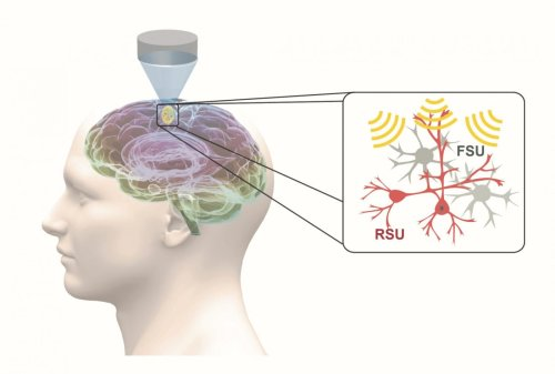 Ultrasound Offers Focused Noninvasive Option for Neuropsychiatric Disorders