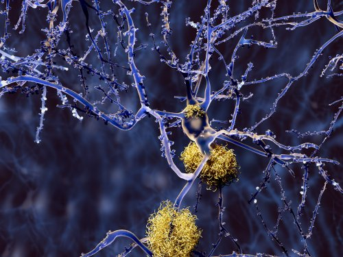 Mouse Model of Alzheimer's Reveals Some Plaques May Defend and Not Destroy