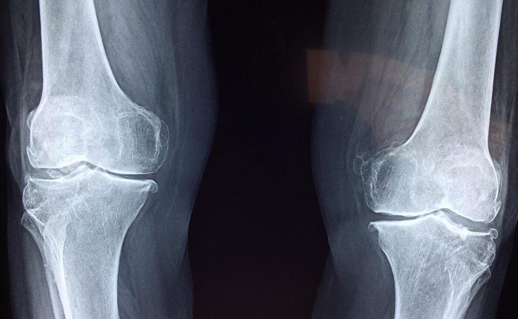 Medecial Bones - cover