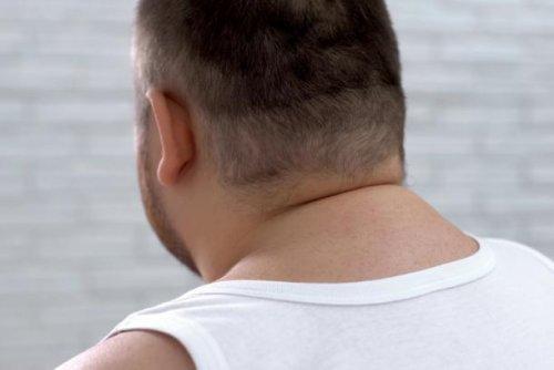 Cushing-Syndrom – was ist das?