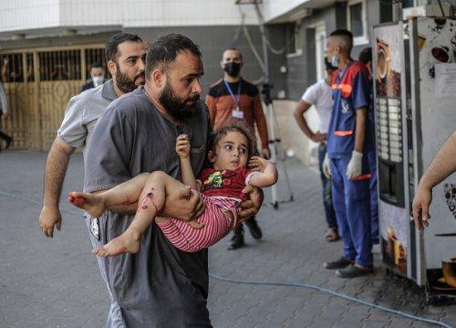 Una bambina ferita dopo un attacco aereo israeliano