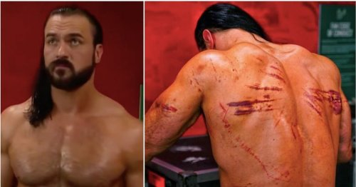 Drew McIntyre's back somehow looked even worse 24 hours after brutal WWE Hell in a Cell match