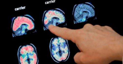 Sixth death has been linked to mysterious brain syndrome in New Brunswick