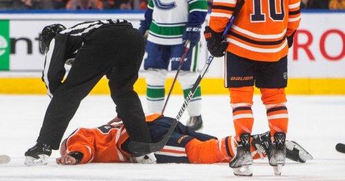 Edmonton Oilers Zack Kassian set to return after injury in fight - Edmonton | Globalnews.ca