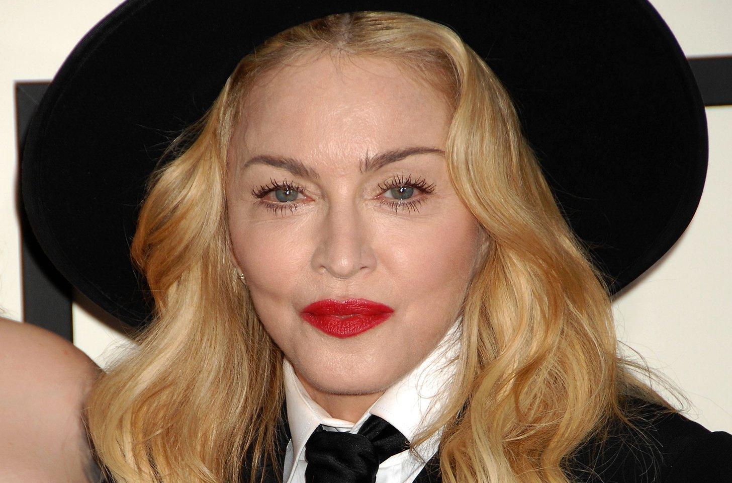 Madonna's Face 'Unrecognizable' After $500K Plastic Surgery?