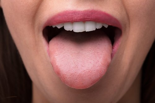 'Covid Tongue' Is The Latest Sign You May Have Been Infected