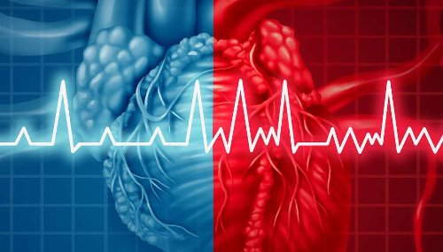 Atrial fibrillation: What are the different types?