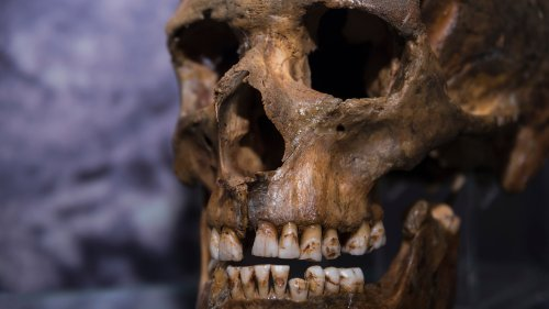 The Surprising Thing Once Used As An Ancient Dental Tool