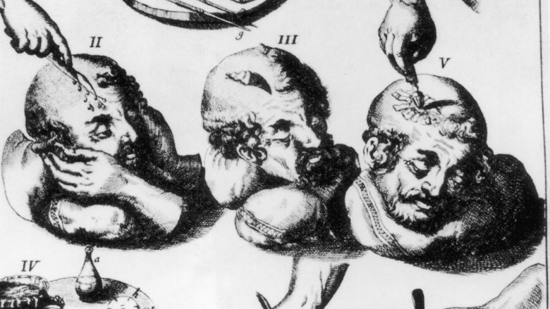 Bizarre Things People Used To Believe About Medicine
