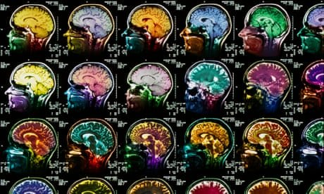 Brain, Mind, Psychology and Psychiatry cover image
