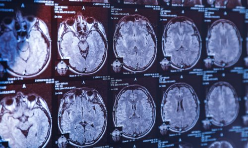 Scientists discover why humans have such big brains