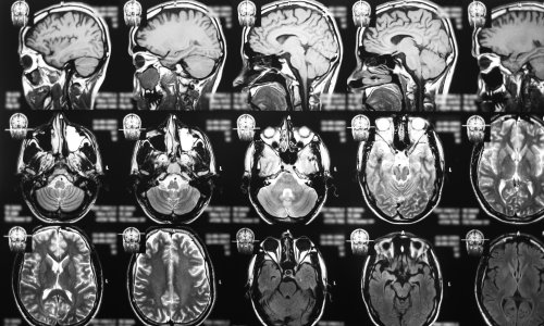 Early findings show new drug could be 'gamechanging' for brain cancer treatment