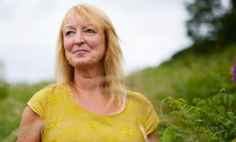 'It messes with you mentally': the fear, swelling and stress of life with lymphoedema