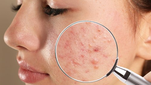 Why Acne And Pimples Aren't The Same Thing
