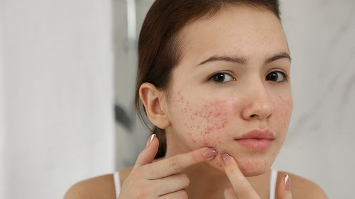 The real reason popping pimples is ruining your skin