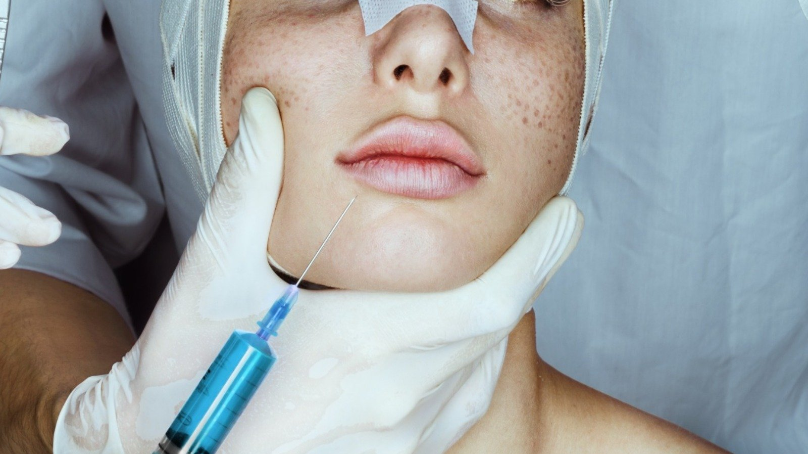 Benefits Of Botox You Never Knew Existed