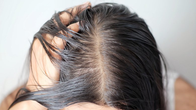 What It Really Means When Your Hair Starts Thinning