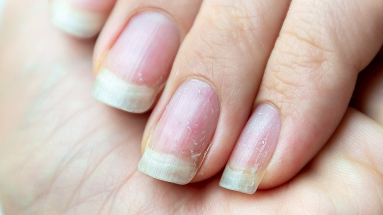The Real Reason Your Fingernails Are Turning Yellow