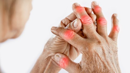 The Real Difference Between Psoriatic Arthritis And Rheumatoid Arthritis