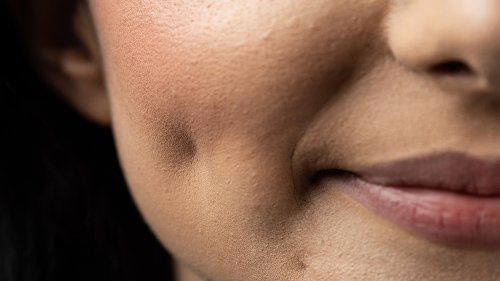 Here's Where The Dimples On Your Cheeks Really Come From