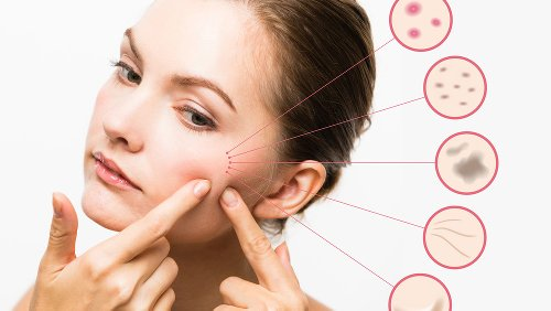 Skin Purging Vs. Breakouts: What's The Difference?