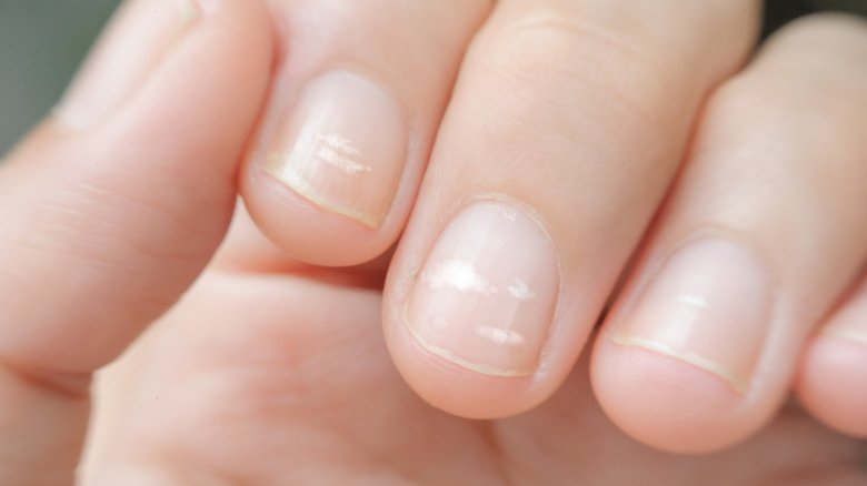 What Those White Spots On Your Fingernails Really Mean