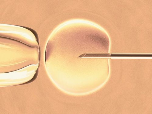 Women deserve greater choice and transparency when it comes to their fertility