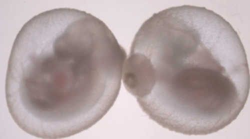 Scientists Grew a Mouse Embryo Outside the Womb. Are Humans Next?