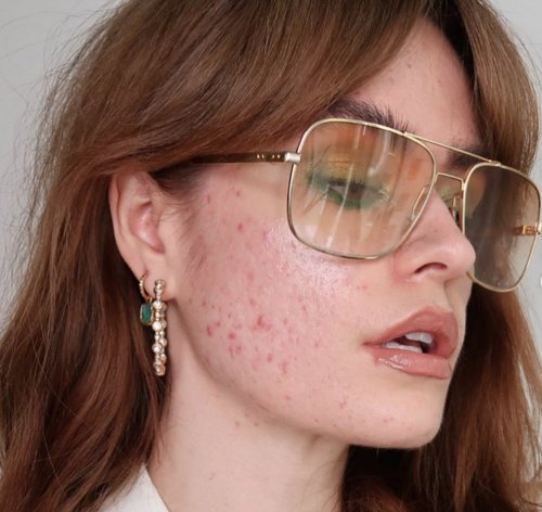Swedish Acne Influencer Showing Self Love Through Imperfect Selfies