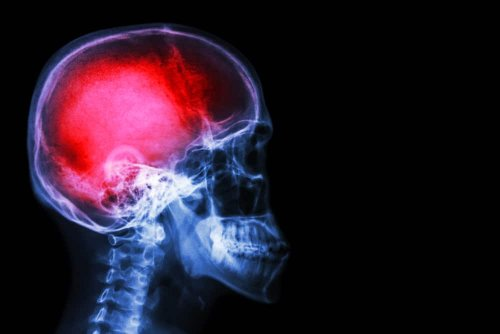 Study on MDMA for Traumatic Brain Injury Boosted By $1.5M Donation | High Times