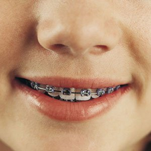 Does your child really need braces?