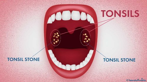 What in the World Are Tonsil Stones?