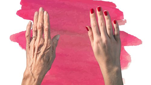 Is A 'Hand Lift' The New Face Lift?