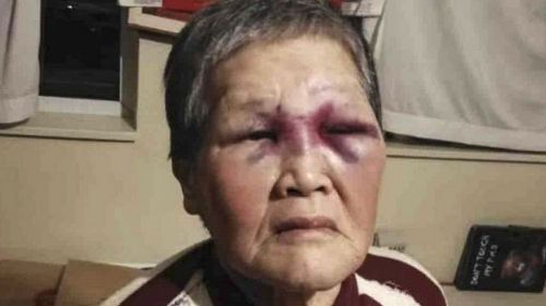 Attacked by a white man, Chinese granny gives nearly US$1 million to fight racism