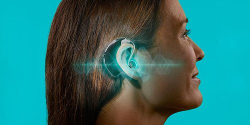 Deep Learning Reinvents the Hearing Aid