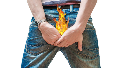 The Fatal Exploding Pants Plague Of New Zealand