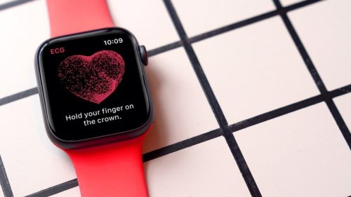 Apple Watch data deemed unreliable by researchers due to new algo changes
